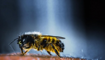 An in-depth guide on bee sting treatments you can try at home.